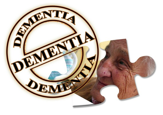 Alzheimer's disease is also known as dementia
