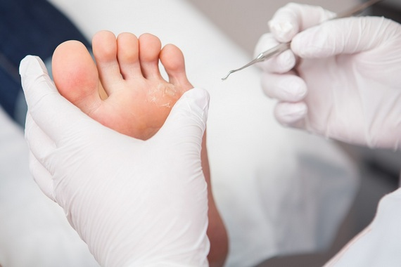 Podiatry involves foot care