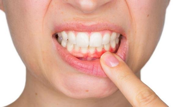 Learn how to prevent gum disease