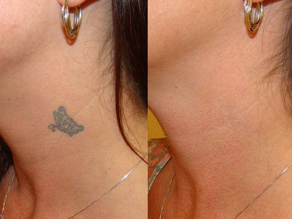 Neck tattoo removed