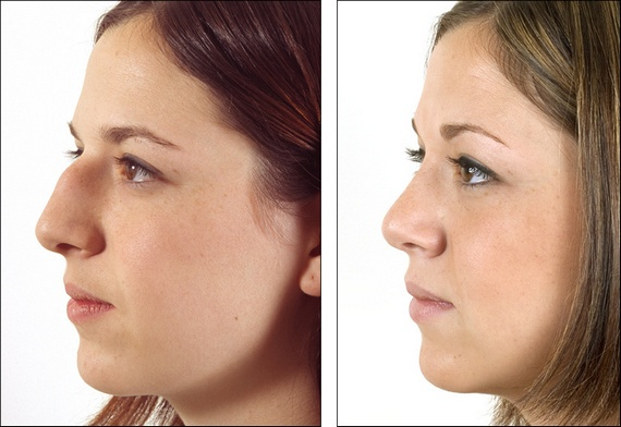 Overedeveloped nose bridge - before and after