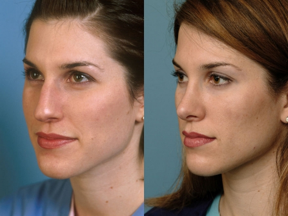 Before and after nose bridge surgery