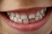 How to Reduce Teeth Gaps